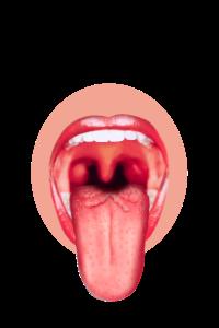 A Tongue1
