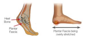 Aheel-pain-spur