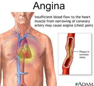 Aangina_10037_2