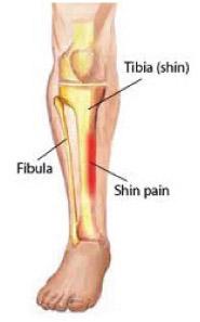 ALower-Leg-Pain