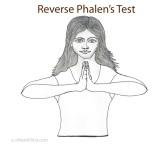 Reverse-Phalens-Test