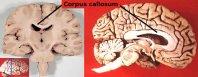 Corpus_callosum